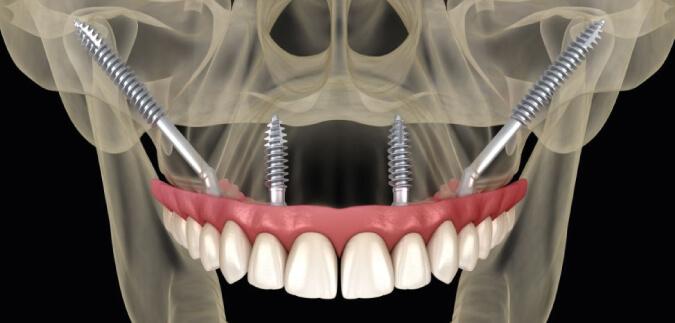 La Odontología en Silao aporta a la tecnología, implantes cigomáticos