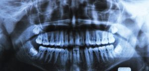 Conoce 1 aplicación de las radiografías dentales en Silao para tu salud